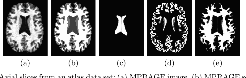 Figure 3 for Contrast Adaptive Tissue Classification by Alternating Segmentation and Synthesis
