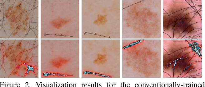 Figure 3 for Skin Lesion Segmentation and Classification with Deep Learning System