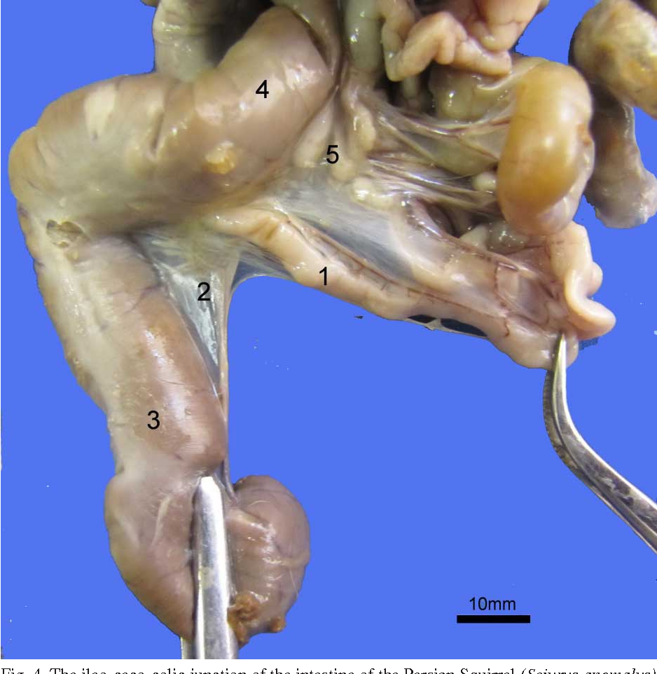 Figure 4 from The Topography and Gross Anatomy of the Abdominal ...