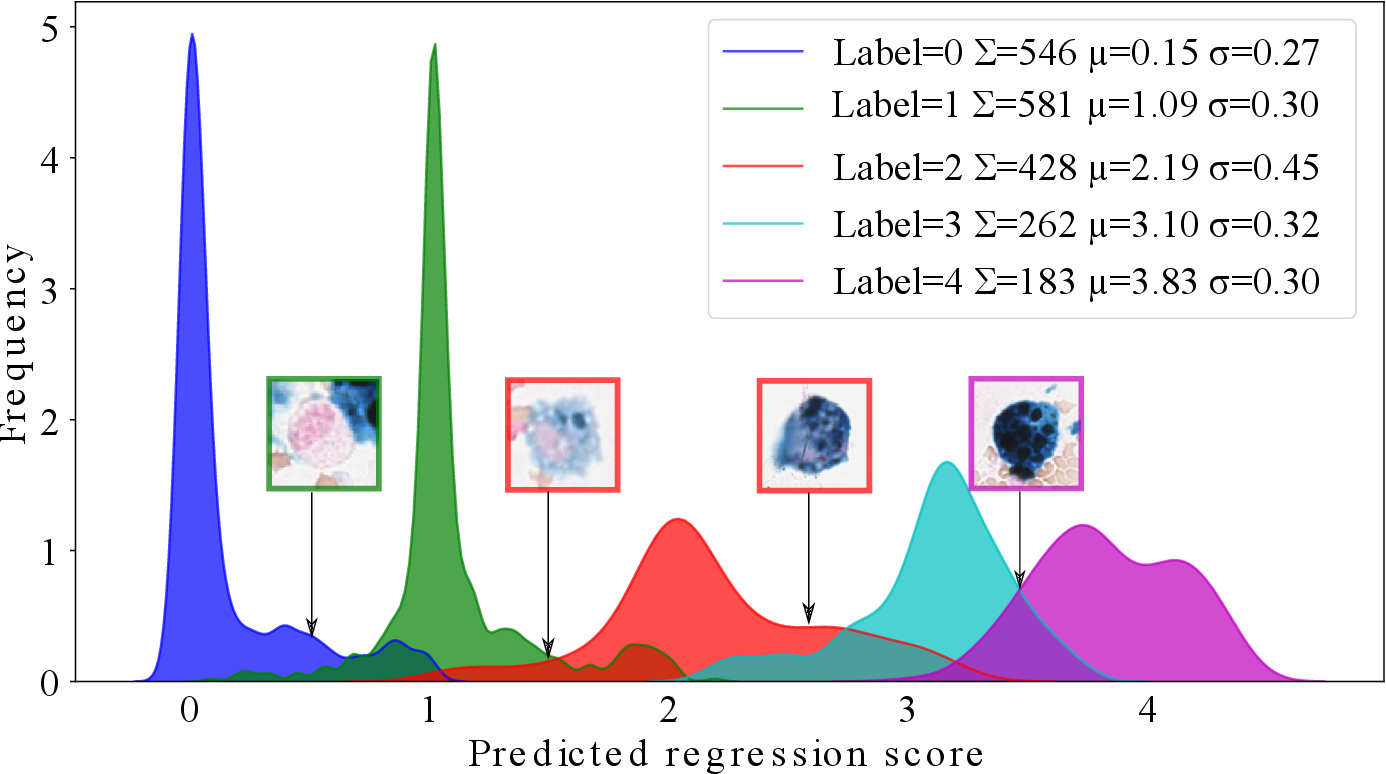 Figure 3 for Deep Learning-Based Quantification of Pulmonary Hemosiderophages in Cytology Slides