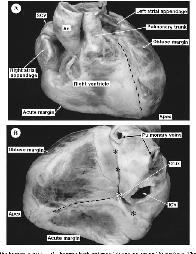 Anatomy of the pig heart: comparisons with normal human cardiac ...