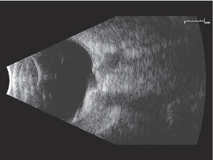 Fig. 3. Ocular ultrasound performed after laser treatment for recurrence, which reveals scleral thinning.