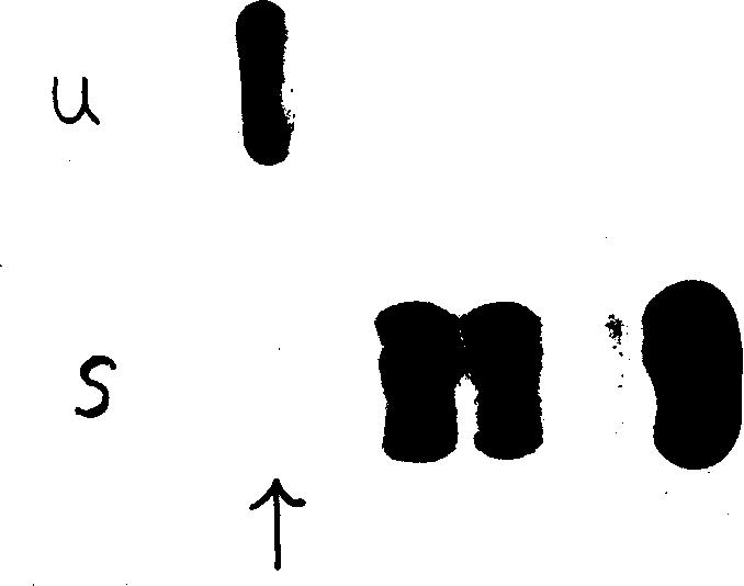 Fig. 1. U Urine Elctrophoretogram, Showing The Distinct Homogeneous Band In  The Gamma