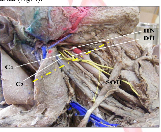 Anatomical Variations In The Ansa Cervicalis And Innervation Of
