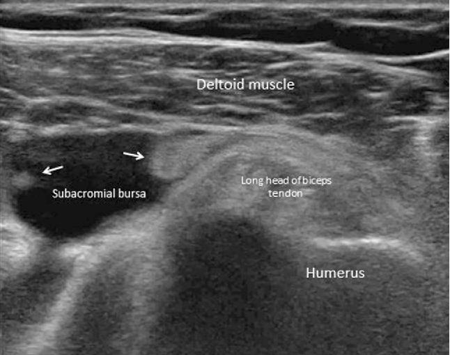 Prevalence Of Subacromial Subdeltoid Bursitis In Shoulder Pain An