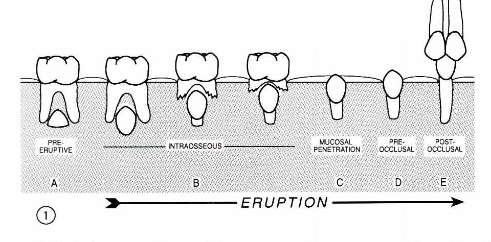 The mechanisms and mediators of tooth eruption models for figure 1 ccuart Image collections