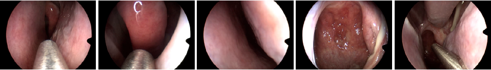 Figure 1 for Learning Representations of Endoscopic Videos to Detect Tool Presence Without Supervision