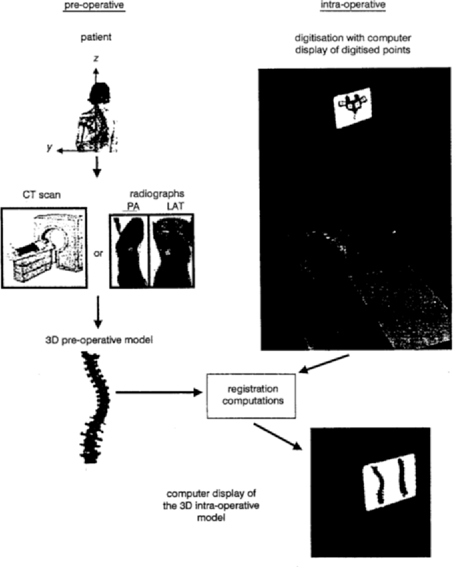Fig. 1 Schematic overview of complete system of surgical assistance