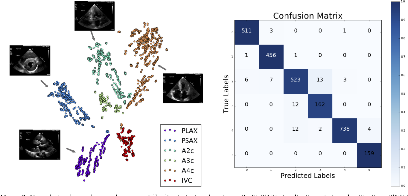 Figure 3 for A Computer Vision Pipeline for Automated Determination of Cardiac Structure and Function and Detection of Disease by Two-Dimensional Echocardiography