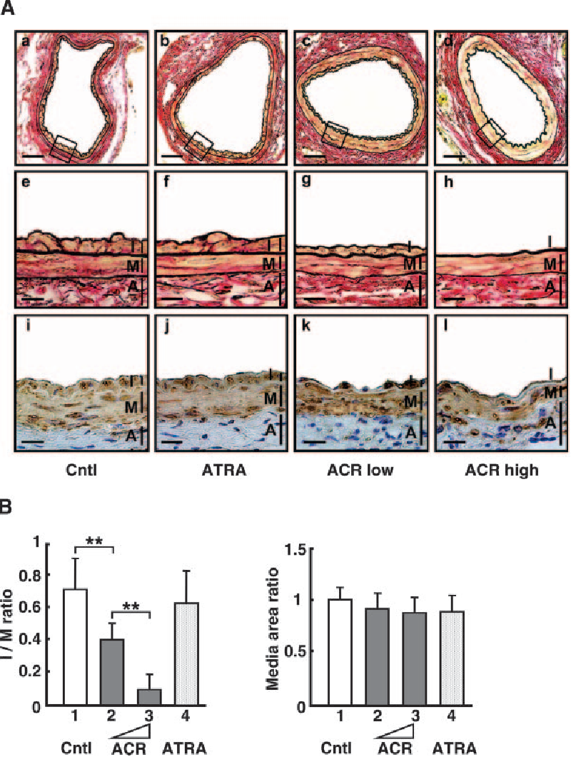 Figure 1. A, Effect of ACR, ATRA, and vehicle control (Cntl) on the formation of neointima in a murine cuffed artery model. Representative cross sections with Elastica van Gieson staining of the cuffed artery. The medial thickness was consistent in all groups. The upper part of the figure shows low-powered views (a to d) and the middle figure shows high-powered views (e to h). Representative cross sections with SM -actin staining same as above (i to l). ACR low, 100 mg/kg; ACR high, 200 mg/kg. Scale bars 50 m (a to d), 10 m (e to h), 25 m (i to l). B, Intima/media ratio and media area ratio in the cuffed artery model. Note that the intima/media ratio significantly decreased under administration of 100 mg/kg and 200 mg/kg of ACR, and media area is similar among the 4 groups. **P 0.01. All above experiments were reproduced on at least 3 other occasions.
