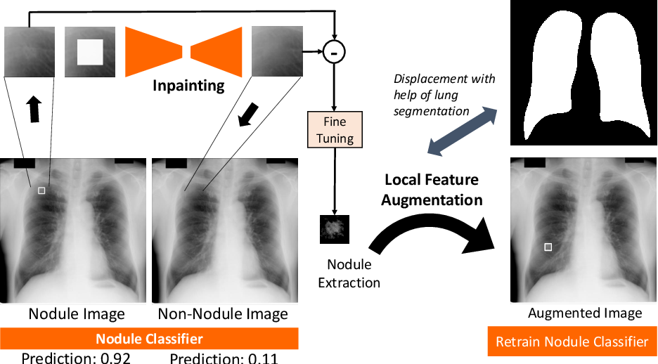 Figure 1 for Extracting and Leveraging Nodule Features with Lung Inpainting for Local Feature Augmentation