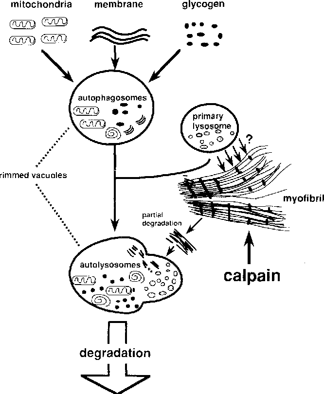 Muscle Fiber Degradation In Distal Myopathy With Rimmed Vacuoles