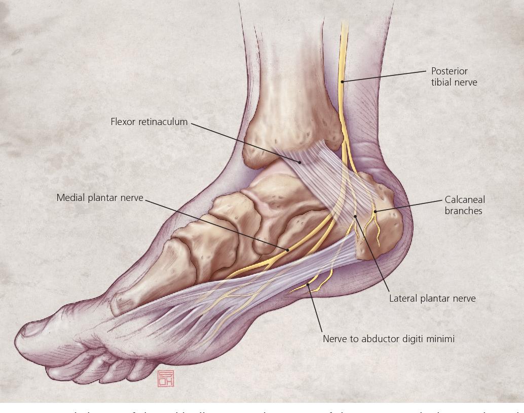Figure 2 From Diagnosing Heel Pain In Adults Semantic Scholar