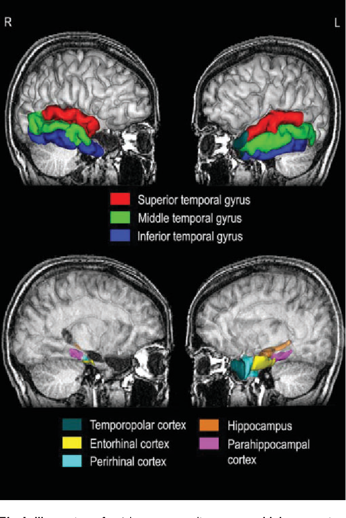 Autobiographical memory after temporal lobe resection ...