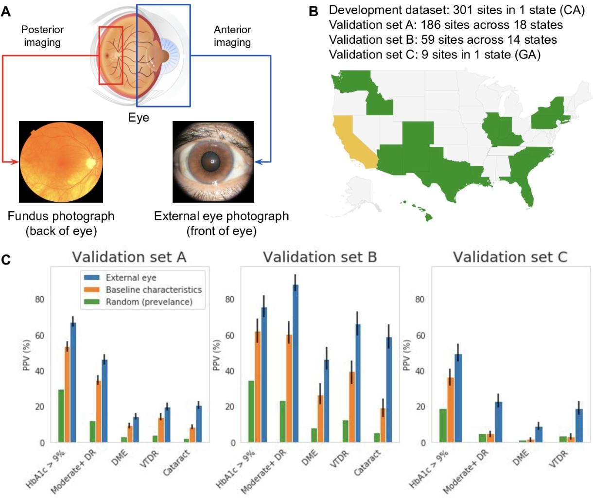 Figure 1 for Detecting hidden signs of diabetes in external eye photographs