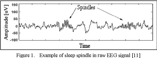 Sleep Spindles Eeg