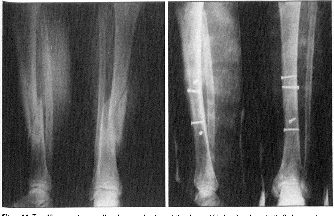 Figure 11 From Downhill Skiing Injuries Semantic Scholar