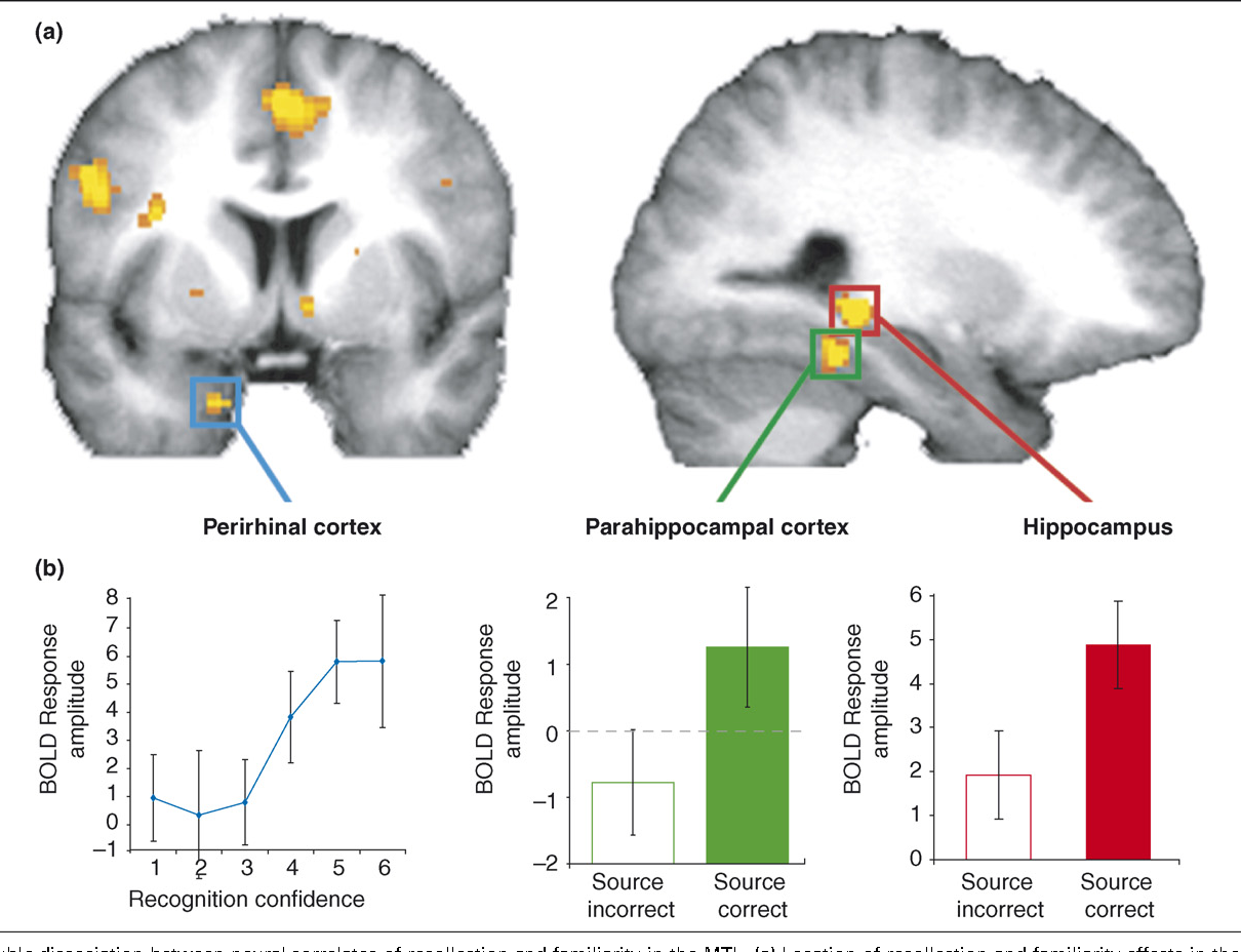 Imaging recollection and familiarity in the medial temporal lobe: a ...