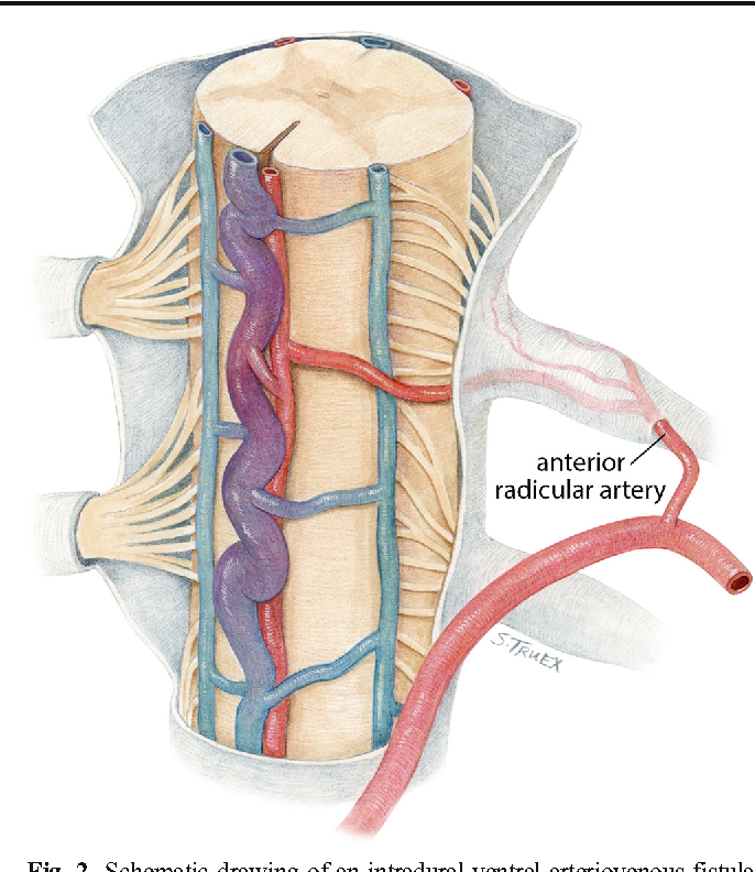 Spinal Vascular Malformations Treatment Strategies And Outcome