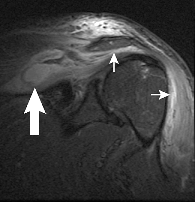 Figure 1 MRI coronal STIR (short-tau inversion recovery) image of left shoulder, demonstrating a supraspinatus fossa collection (thick arrow) and edema in the subacromial-subdeltoid bursa (thin arrows).