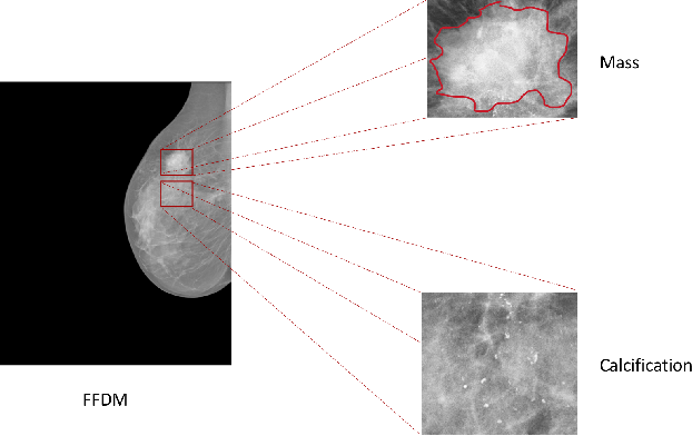 Figure 1 for Zoom in to where it matters: a hierarchical graph based model for mammogram analysis
