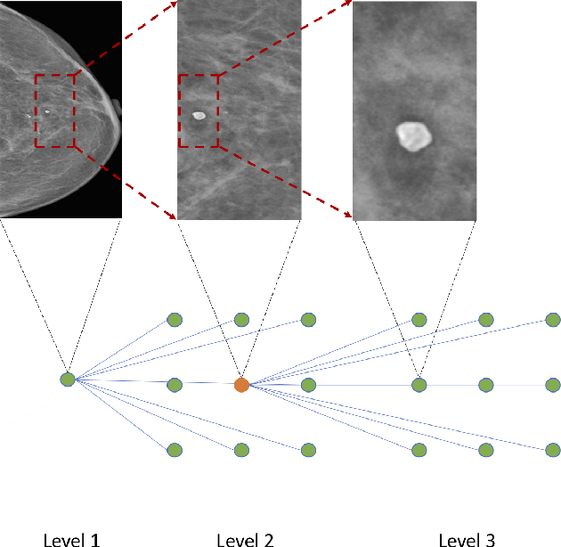 Figure 3 for Zoom in to where it matters: a hierarchical graph based model for mammogram analysis