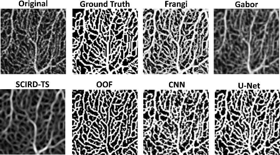 Figure 2 for Automated and Network Structure Preserving Segmentation of Optical Coherence Tomography Angiograms