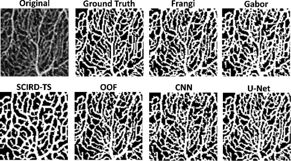 Figure 3 for Automated and Network Structure Preserving Segmentation of Optical Coherence Tomography Angiograms