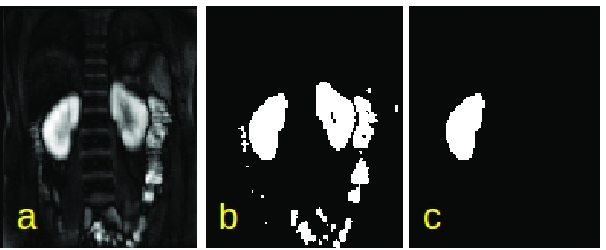 Figure 2 for Automatic Delineation of Kidney Region in DCE-MRI