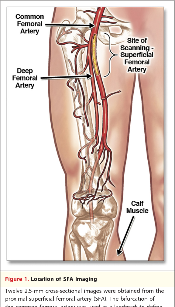 Superficial femoral artery plaque and functional performance in ...