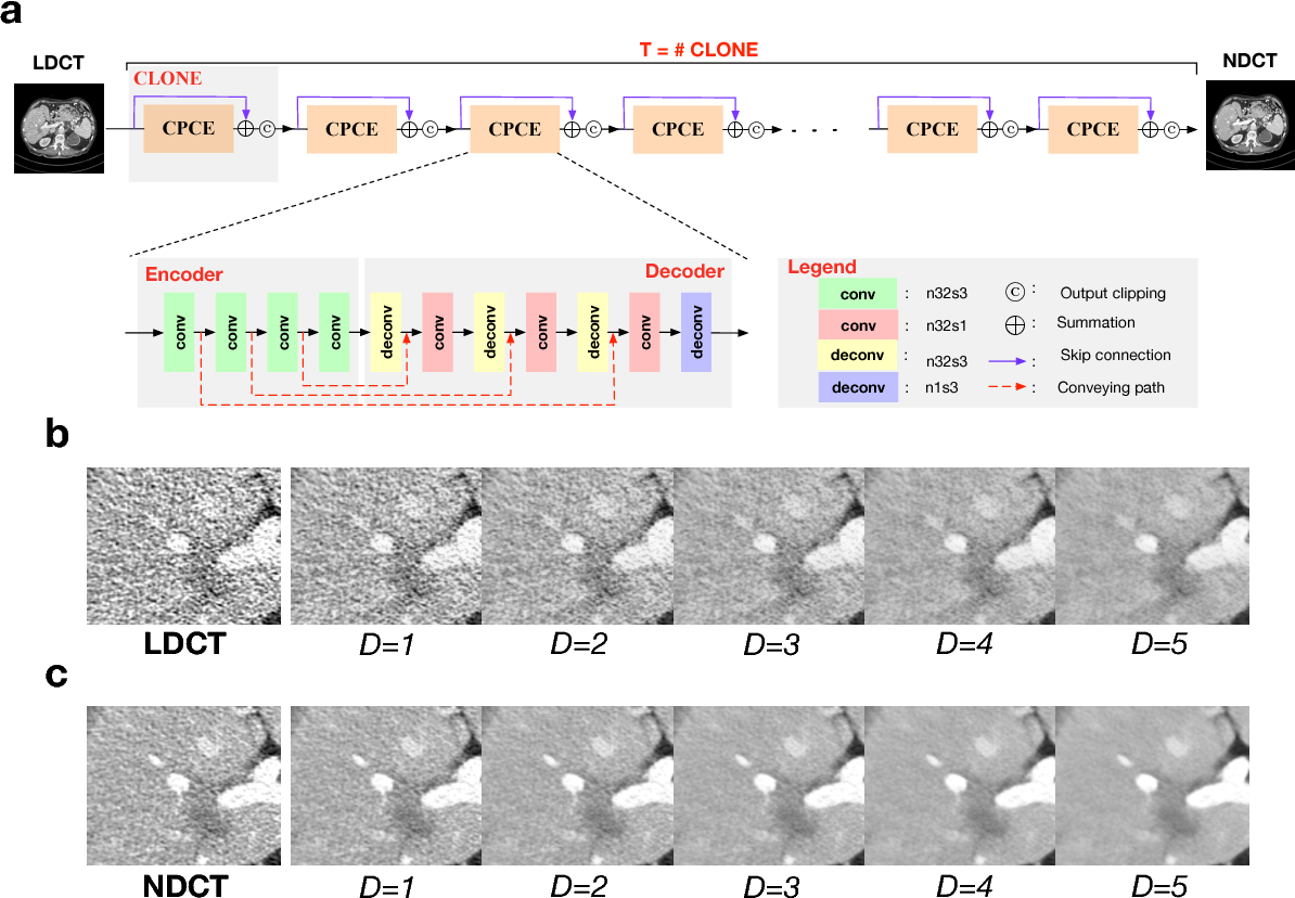 Figure 1 for Can Deep Learning Outperform Modern Commercial CT Image Reconstruction Methods?