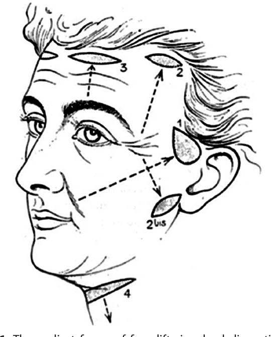 Figure 6 From Face Lift