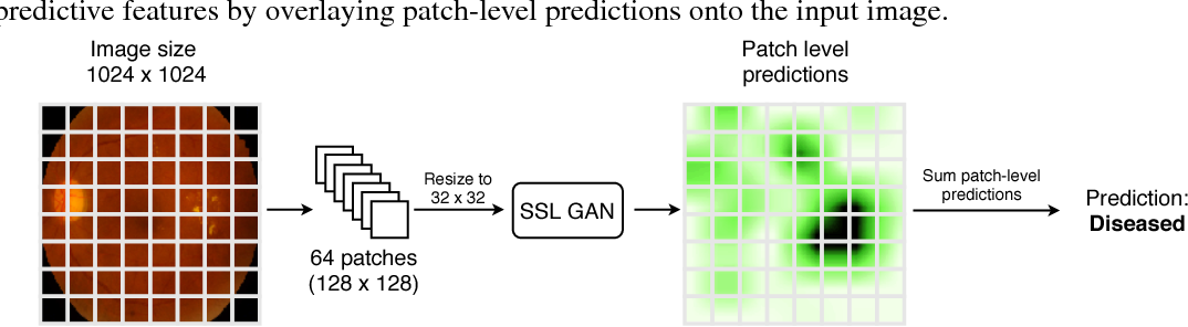 Figure 1 for Semi-Supervised Deep Learning for Abnormality Classification in Retinal Images