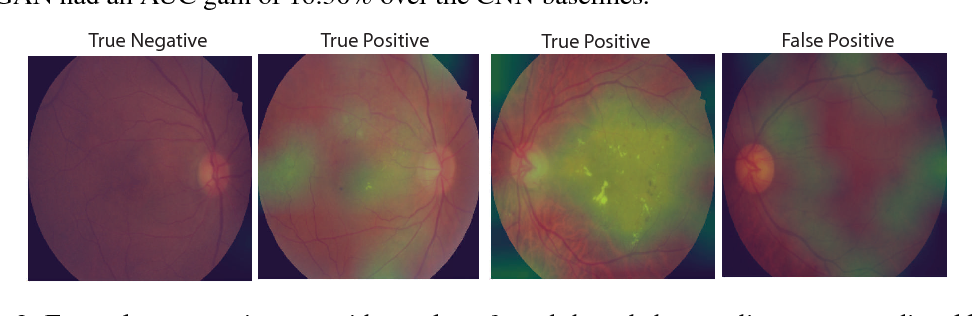 Figure 4 for Semi-Supervised Deep Learning for Abnormality Classification in Retinal Images