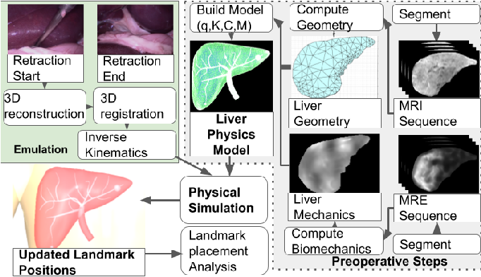 Figure 3 for Patient Specific Biomechanics Are Clinically Significant In Accurate Computer Aided Surgical Image Guidance