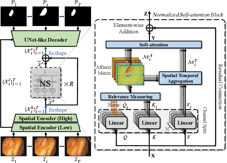 Figure 1 for Progressively Normalized Self-Attention Network for Video Polyp Segmentation