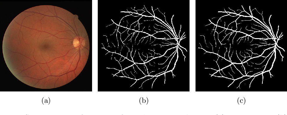 Figure 1 for Deep Dilated Convolutional Nets for the Automatic Segmentation of Retinal Vessels