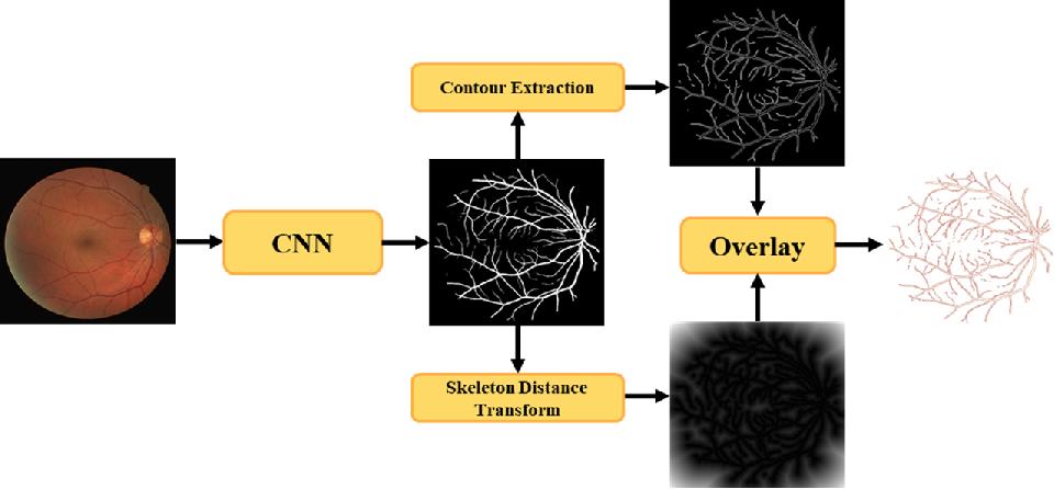 Figure 4 for Deep Dilated Convolutional Nets for the Automatic Segmentation of Retinal Vessels