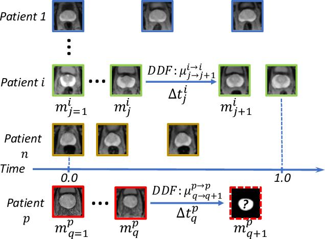 Figure 2 for Morphological Change Forecasting for Prostate Glands using Feature-based Registration and Kernel Density Extrapolation