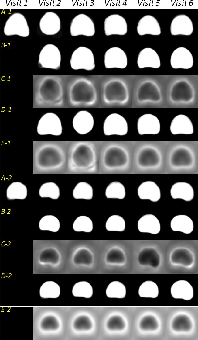Figure 4 for Morphological Change Forecasting for Prostate Glands using Feature-based Registration and Kernel Density Extrapolation