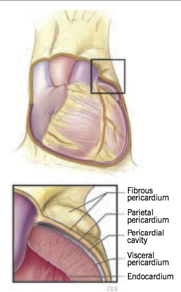 Figure 1 From Surgical Management Of Pericardial Diseases