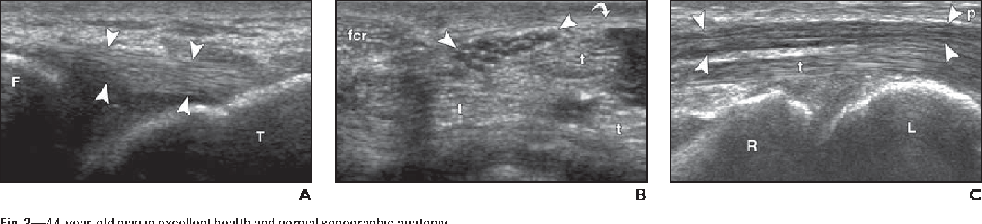 Figure 244 From Musculoskeletal Ultrasound Focused Impact On Mri