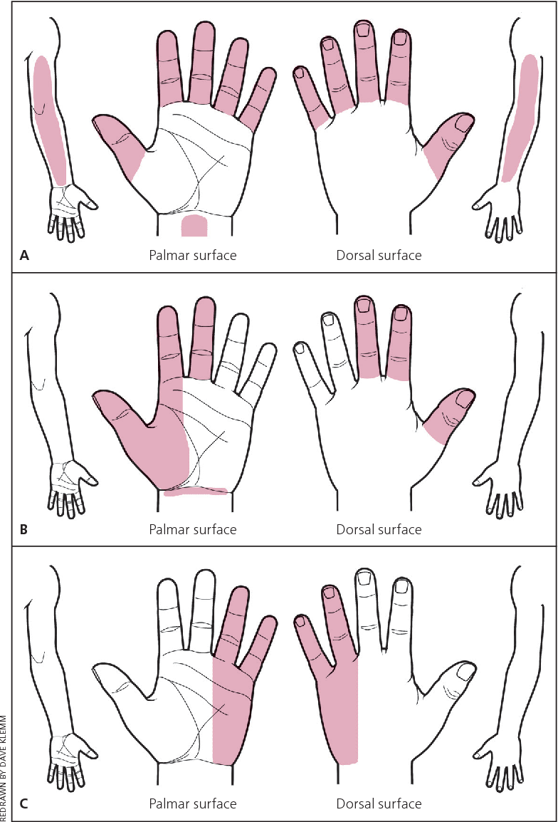 Figure 2 from Carpal tunnel syndrome--diagnosis and management ...