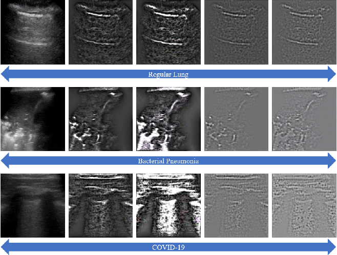Figure 1 for Multi-Feature Multi-Scale CNN-Derived COVID-19 Classification from Lung Ultrasound Data