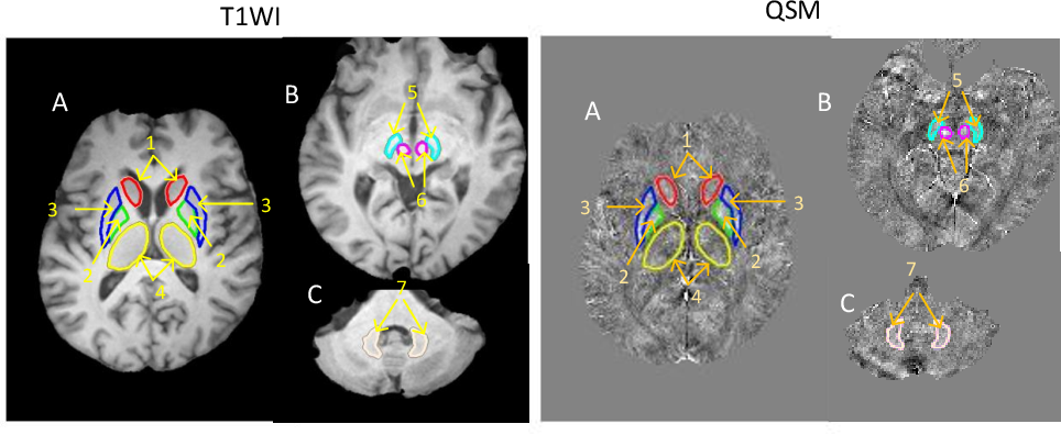 Figure 1 for Automated Segmentation of Brain Gray Matter Nuclei on Quantitative Susceptibility Mapping Using Deep Convolutional Neural Network