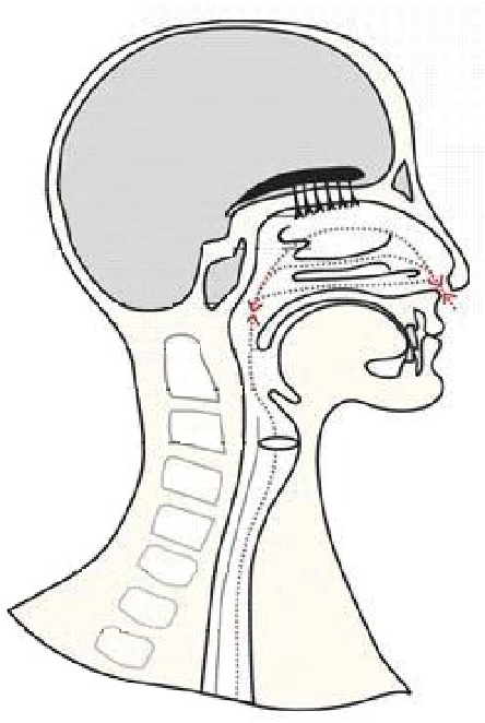 Olfactory Function After Total Laryngectomy In Swedish Patients