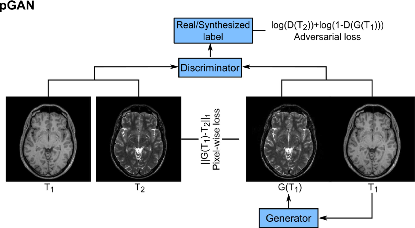 Figure 1 for Image Synthesis in Multi-Contrast MRI with Conditional Generative Adversarial Networks