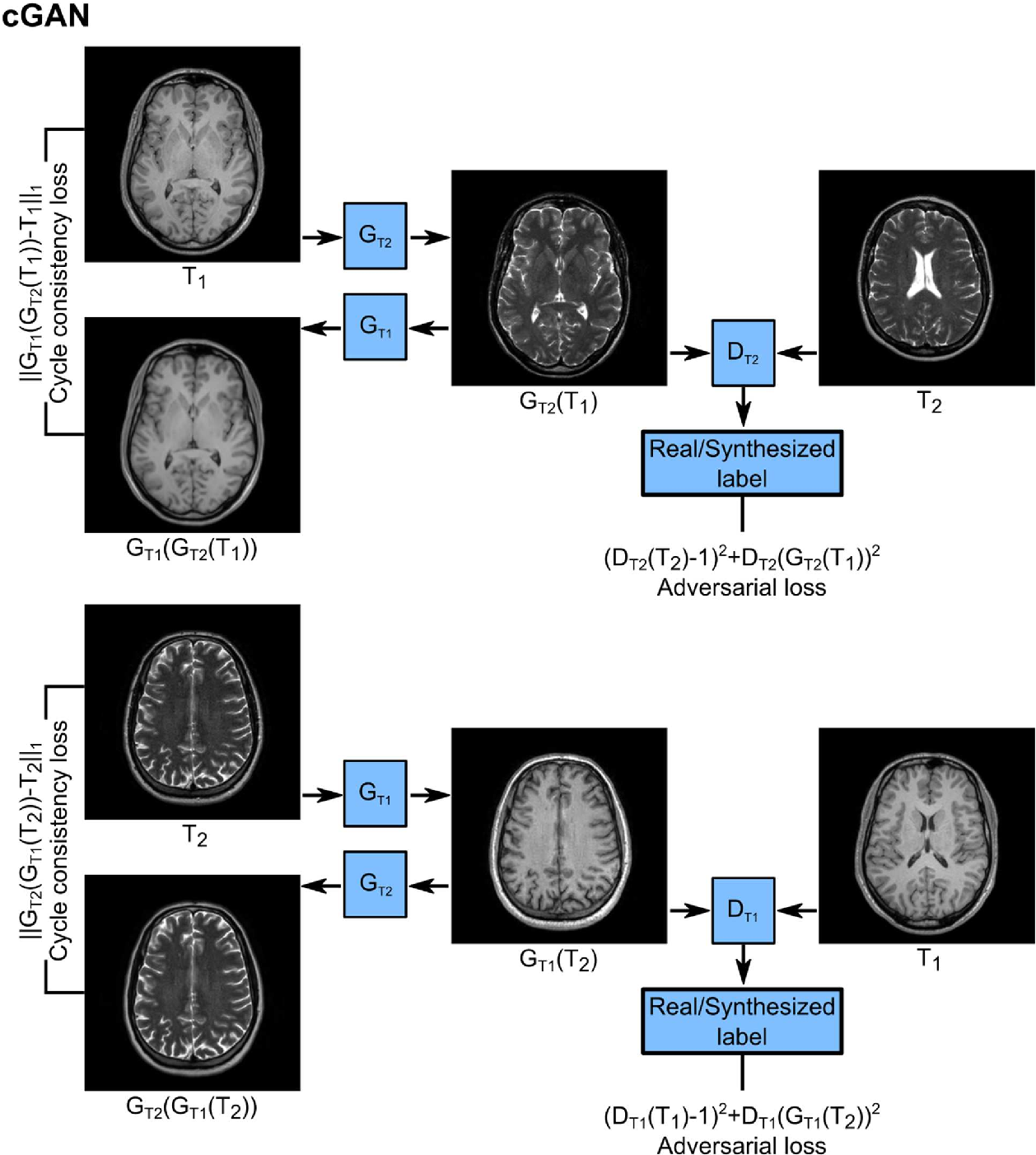 Figure 2 for Image Synthesis in Multi-Contrast MRI with Conditional Generative Adversarial Networks