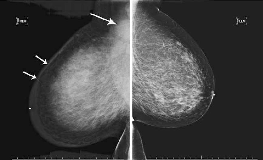 MRI blowjob