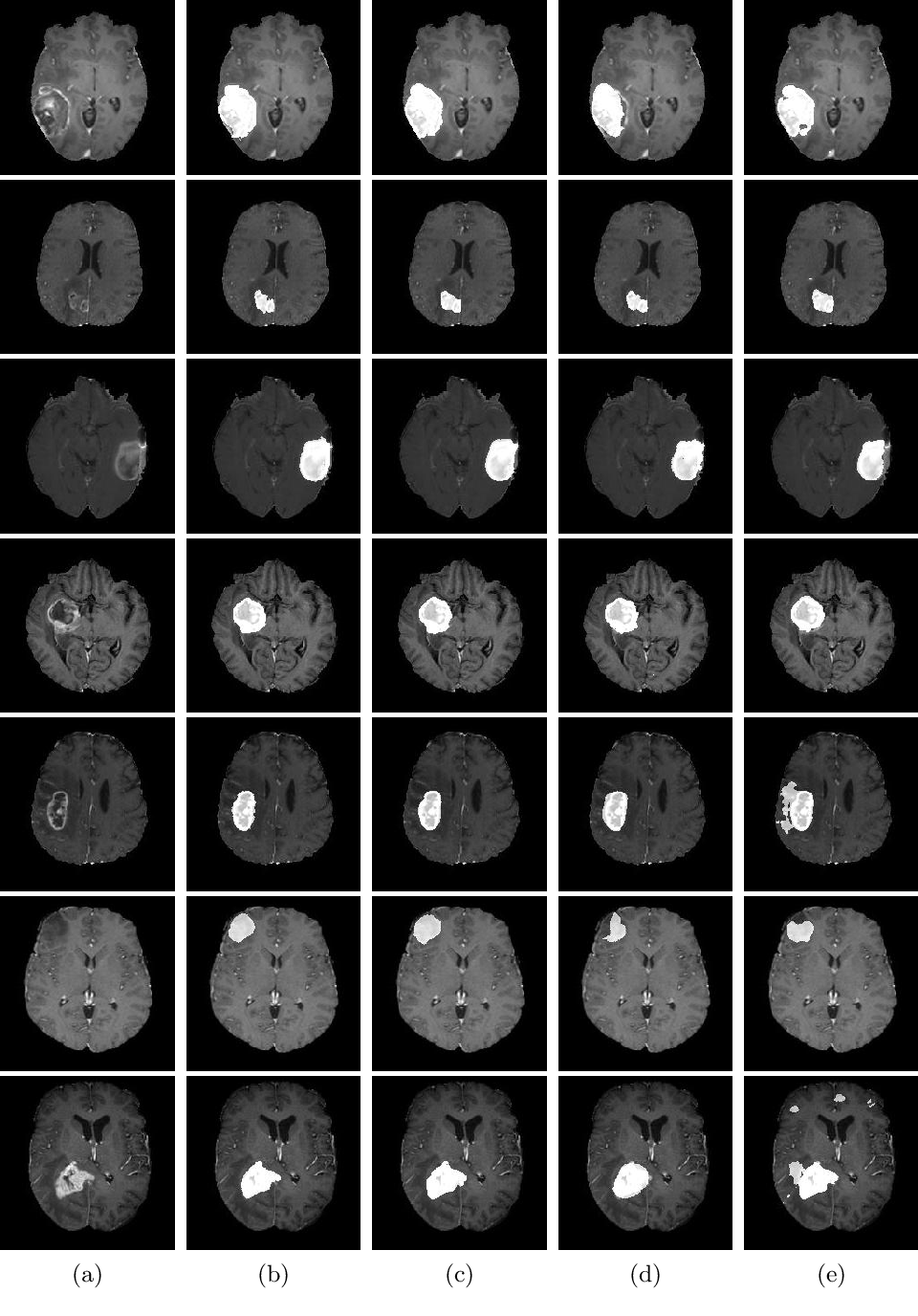 Figure 4 for End-to-End Boundary Aware Networks for Medical Image Segmentation